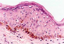 黑色素细胞