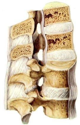 颈椎退行性变