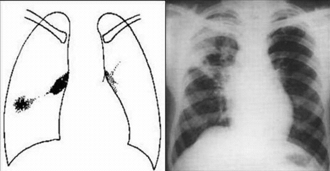 肺结核胸片表现_原发性肺结核_360百科